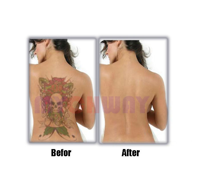 Laser hair removal before and after arms